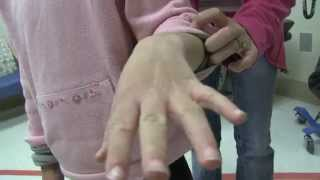 Family Scabies Infestation