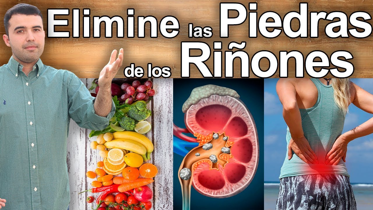 remedios para deshacer las piedras en los rinones