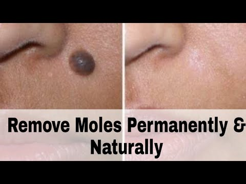 how-to-remove-moles-permanently-and-naturally