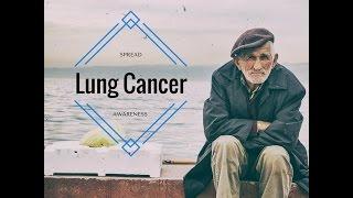 Lung Cancer Meosthelioma - Cancer Awareness