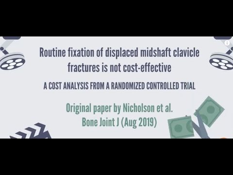 Routine fixation of displaced midshaft clavicle fractures is not