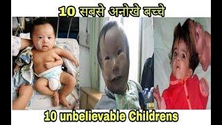दुनिया के 10 सबसे अदभुत बच्चे जिनके पास EXTRA BODY PARTS है |10 CHILDRENS WHO HAVE EXTRA BODY PARTS|