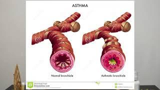 Kenali Penyakit Asma - Asma merupakan kelainan peradangan kronik saluran nafas yang bisa menyebabkan.