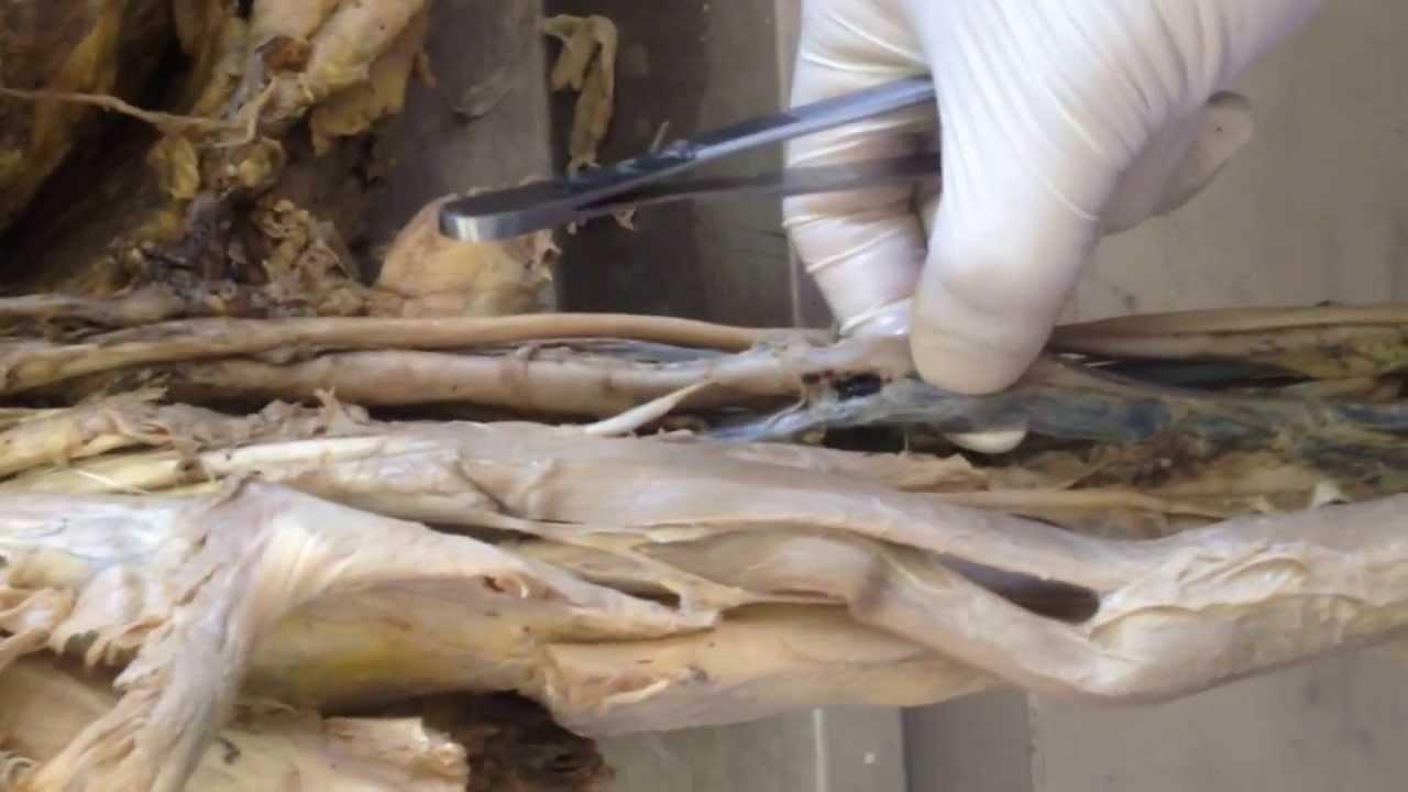 University of Sulaimani - Anatomy of Upper limb (cadaver) - YouTube