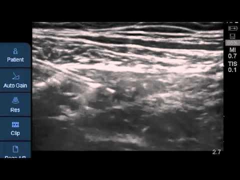 fascia lata / fascia iliacus nerve block [ozemedicine - wiki for, Muscles