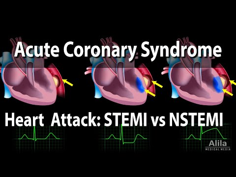 Acute Coronary Syndrome: Unstable Angina, NSTEMI and STEMI (Heart Attack), Animation