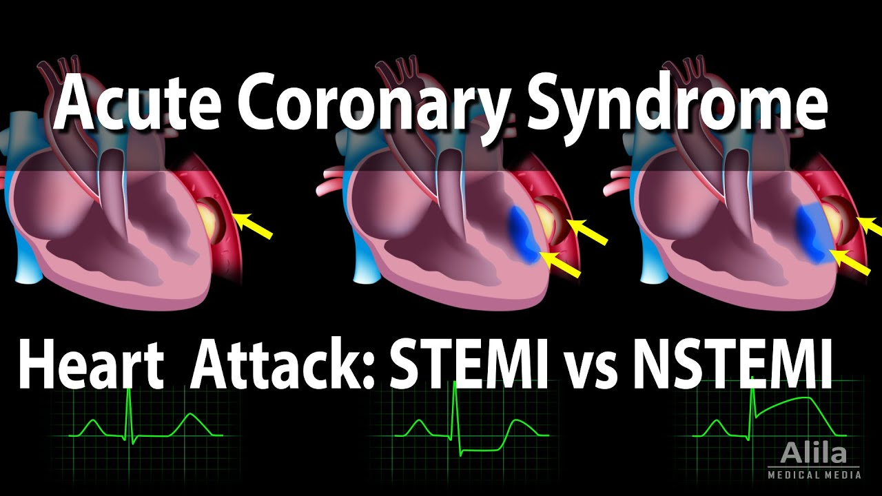 Download Acute Coronary Syndrome: Unstable Angina, NSTEMI and STEMI (Heart Attack), Animation