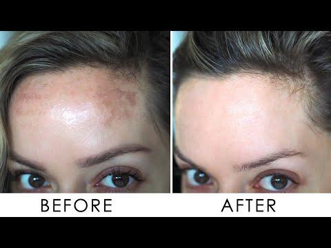 How I Got Rid Of Pigmentation / Melasma | Shonagh Scott