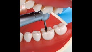 3 شرح أدوات أسنان أدوات الاوبريتف Dental Operative Tools Preclinical Youtube
