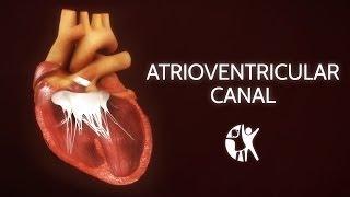 Atrioventricular Septal Defect - AV Canal