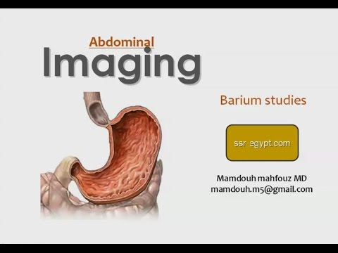 Radiology of Stomach (Barium Meal) - Prof. Dr. Mamdouh Mahfouz (In Arabic)