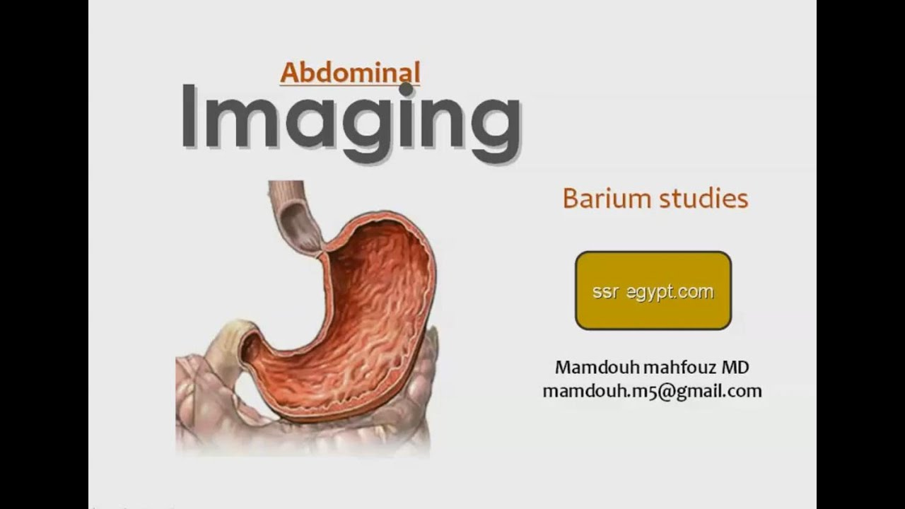Radiology of stomach barium meal prof dr mamdouh mahfouz in radiology of stomach barium meal prof dr mamdouh mahfouz in arabic ccuart Choice Image
