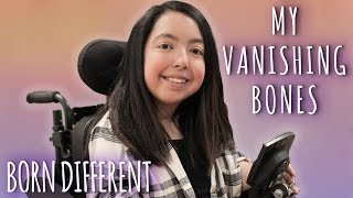 The Teenager With Vanishing Bones | BORN DIFFERENT