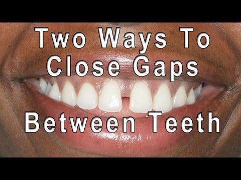 How to Close Gaps Between Teeth