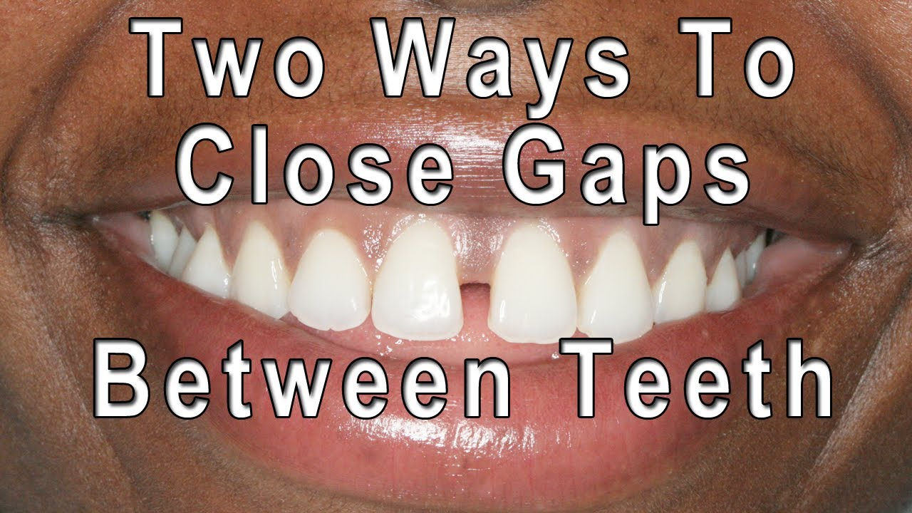 många fashionabla butik försäljning exklusivt sortiment How to Close Gaps Between Teeth - YouTube