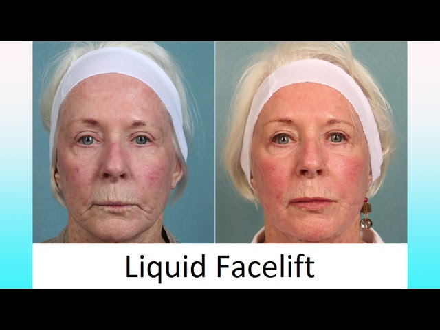 Liquid Facelifts for the Holidays