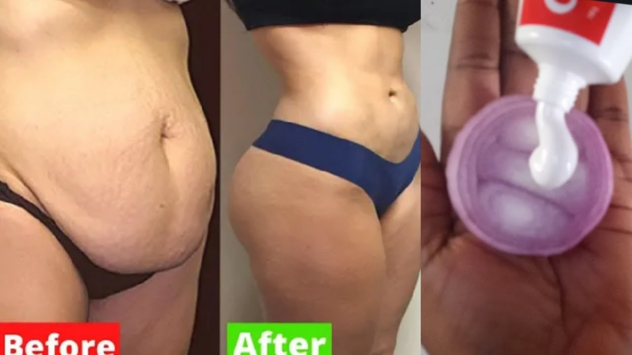 Download JUST APPLY IT BEFORE BEDTIME & BURN FAT OVERNIGHT    IN 3 DAYS LOSE YOUR WEIGHT FAST