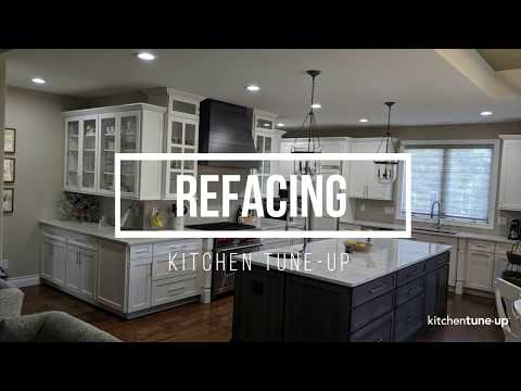 Refacing Before And After