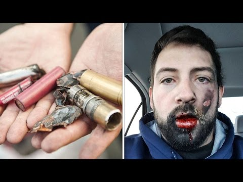E-Cigarette Lithium Ion Batteries Are Mangling Users - The Ring Of Fire