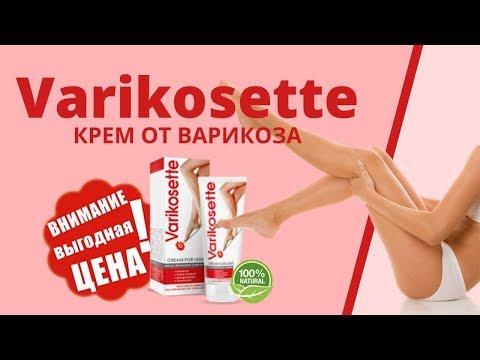 Крем Varikosette от варикоза купить, цена, реальные отзывы. Средство от варикоза Varikosette обзор