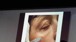 Введение гиалуронидазы при гиперкоррекции носослезной борозды