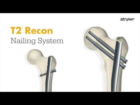 Stryker Trauma & Extremities | Femoral Nailing | T2 Recon
