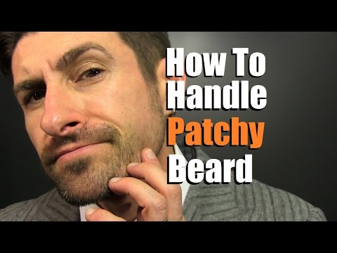 Thumbnail: How To Deal With A Patchy Beard | Bald Spot Reduction Tips