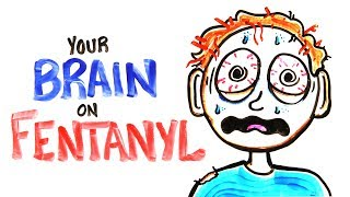 Your Brain On Fentanyl Fixed