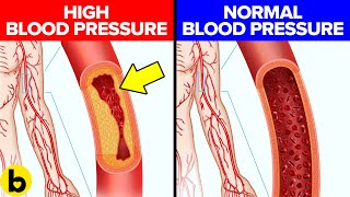 10 Things You Can Do To Lower Your Blood Pressure