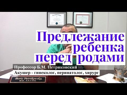 Предлежание плода - интервью с профессором Петриковским о родах в США
