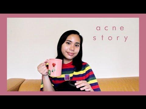 spilling-the-tea-on-hormonal-acne...- -rachel-marie-abreu