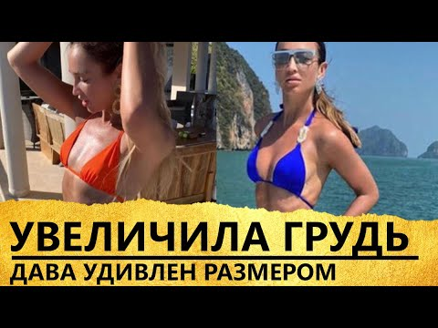 Ольга Бузова сделала грудь для Давида Манукяна [увеличила грудь в Тайланде]