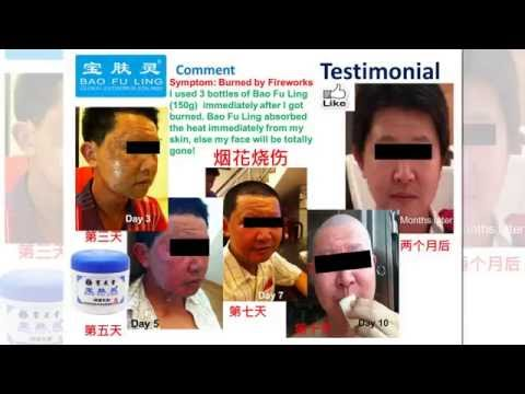 hqdefault - Bao Fu Ling Cream Acne