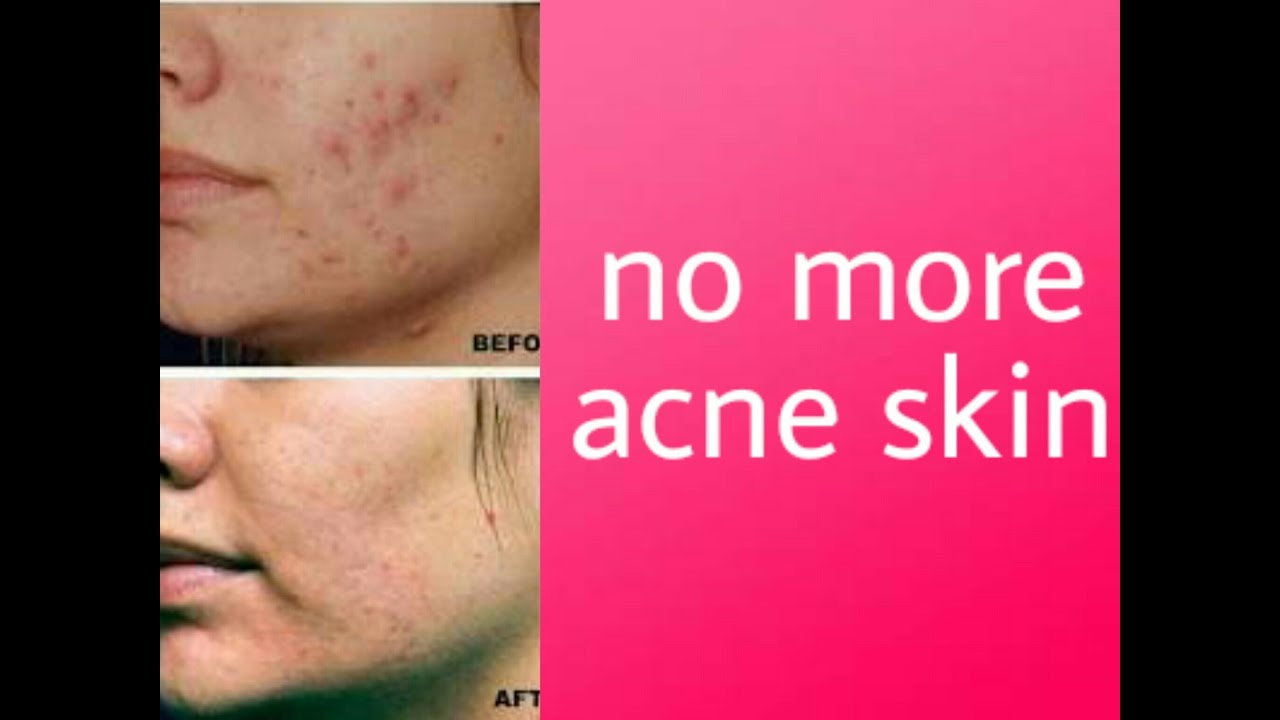 skin and acne products Shop and read customer reviews for the best acne treatments from clinique  skin care to makeup, everything clinique is rooted in  about clinique products,.