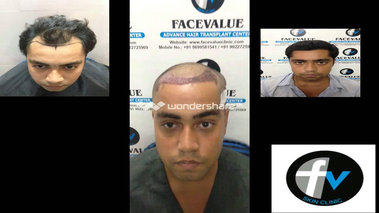 Fue Hair Transplant India Mumbai Youtube