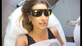 видео Эпиляция волос над губой