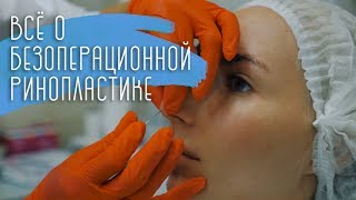 Безоперационная ринопластика. Новый нос без операции. Пластика носа в Москве. Ринопластика носа.(, 2018-07-31T10:51:49.000Z)