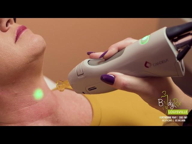Laser treatments - Hair, Skin and Veins at BodyRx Louisville