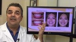 Porcelain Veneers Alternative - Bioclear vs bonding - San Diego Cosmetic Dentist