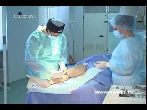 Метод лечения ног от варикоза и аварийного синдрома.