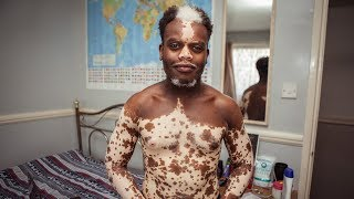 My Vitiligo is Disappearing - But I Don't Want It To | BORN DIFFERENT