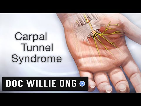 Syndrome Carpal TunnelSyndrome Carpal Tunnel adalah diantara komplikasi yang penyebabnya tidak .