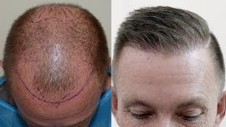 Hair Transplant Results After Year