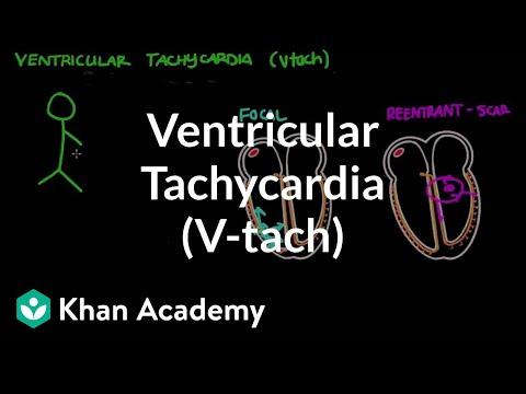 Ventricular Tachycardia (Vtach) | Circulatory System And Disease | NCLEX-RN | Khan Academy