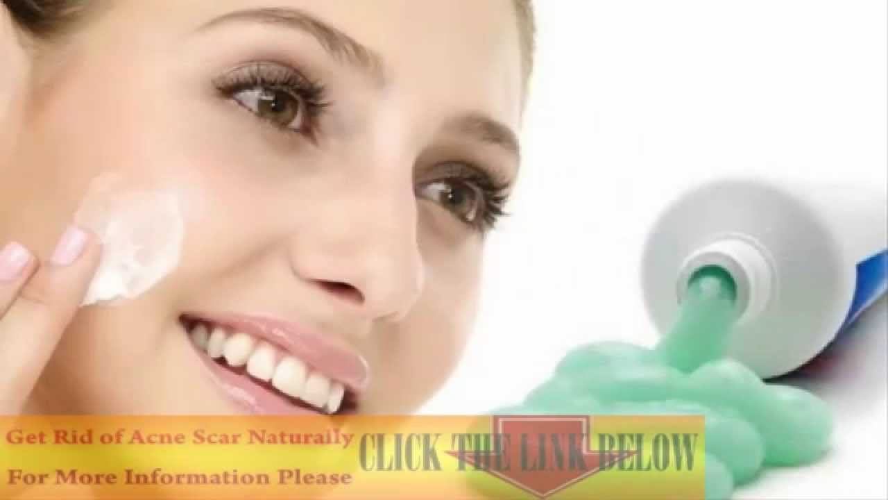 Does Toothpaste Get Rid Of Acne - Best Acne Treatments ...