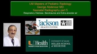 Neonatal Radiography Part 5  Barotrauma and Extra Alveolar Air
