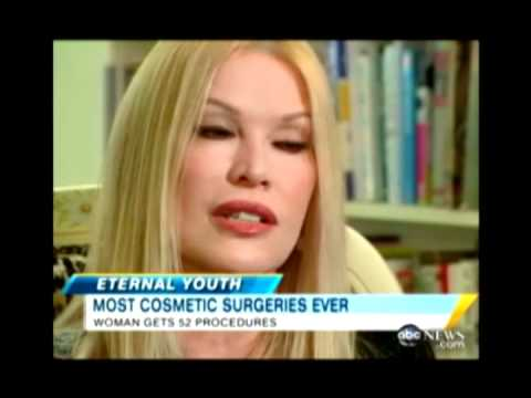 Most Plastic Surgeries Ever - Cindy Jackson World Record