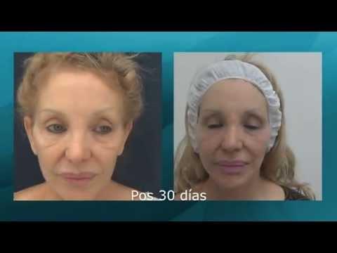 Lifting de cara y cuello y láser Fire-Xel - Evolución (15121)