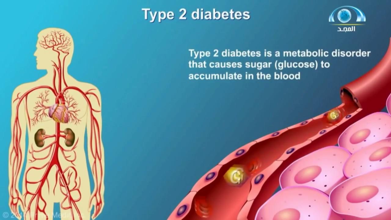 03e1aa2b0 كيف يحدث مرض السكري   أعراضه   طرق الوقاية منه ؟ - YouTube