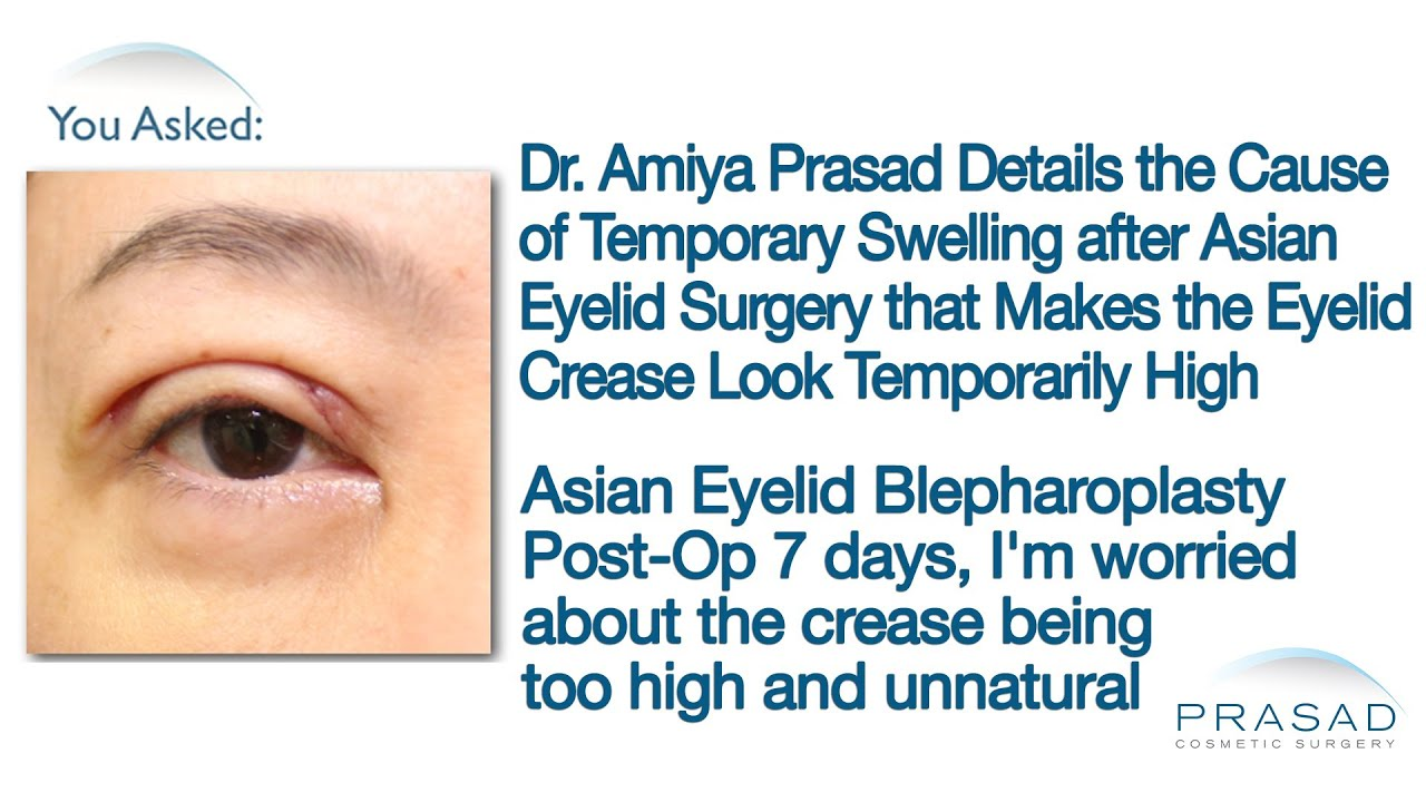 Why Temporary Swelling Concentrates in the Upper Eyelids after Asian ...
